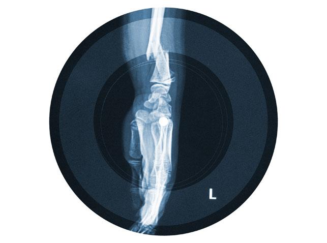 Şiddete karşı röntgen plaklar