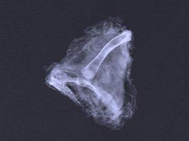 Gerçek tavuk röntgeninden belli olur